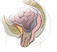Опущение матки, Опущение влагалища (органов малого таза)